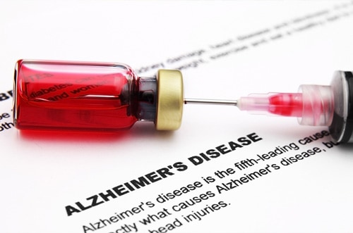 More-Evidence-For-The-Strange-Link-Between-Sugar-And-Alzheimer's